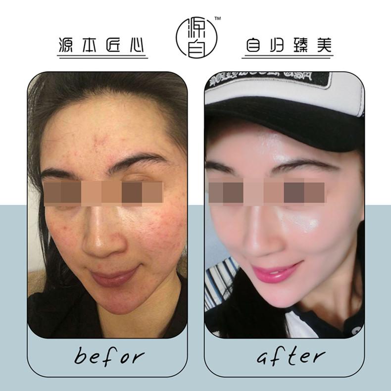 源自护肤敏感肌套装免费试用进行中