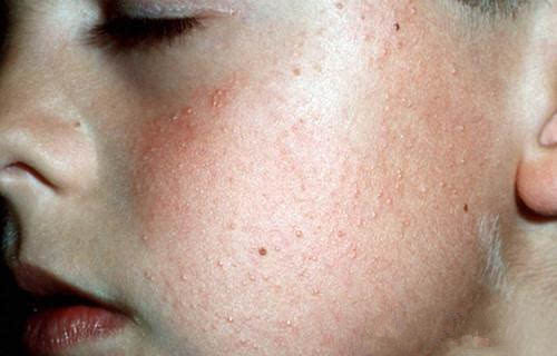 麻麻赖赖的鸡皮肤形成原因?以及怎么消除?