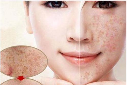 激素脸是怎么形成的?源自护肤来为你解析
