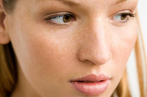 """敏感肌脸上多有斑点,或是""""它""""少了,常补充,排出垃圾"""