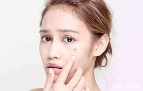 敏感肌肤起痘痘怎么办?源自护肤教你如何与它分手
