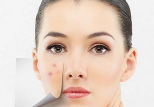 敏感肌肤经常长痘痘,是炸鸡、汉堡的错吗?