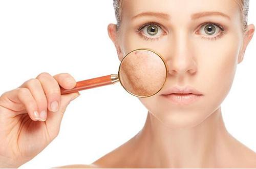 红血丝用护肤品能够修复好吗?减少刺激,恢复角质层