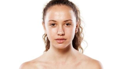 """油性皮肤如何控油?这几个方法帮你全天清爽,无""""油""""无虑!"""
