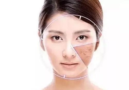 因为激素护肤品变成了敏感肌肤怎么办?源自护肤答疑