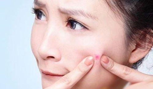 敏感肌肤和油性肌肤都会起痘痘,它们祛痘的方法有何不同?