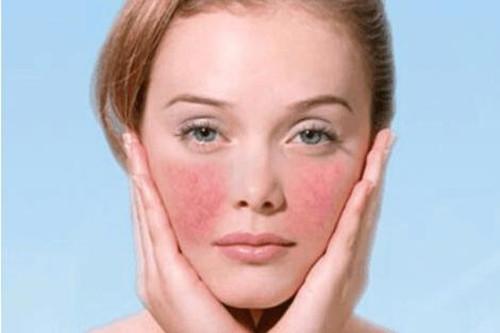 敏感性红血丝肌肤要怎么保养?减缓压力,同样重要