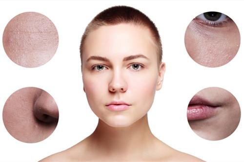 敏感性肌肤都有哪些常见症状?了解敏感肌种类,呵护好肌肤