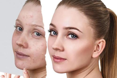 春季我们的肌肤干燥又敏感,这样的季节如何护理肌肤?